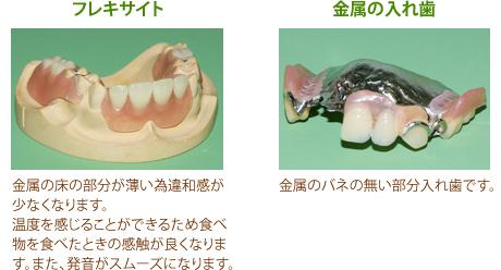 フレキサイトと金属の入れ歯