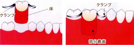 部分入れ歯(部分義歯)を用いた治療法